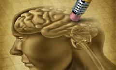 13325473-dementie-ziekte-en-het-verlies-van-de-hersenfunctie-en-het-verliezen-van-herinneringen-als-alzheimer